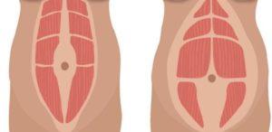 Diastasi addominale: cos'è e revisione dei metodi di trattamento